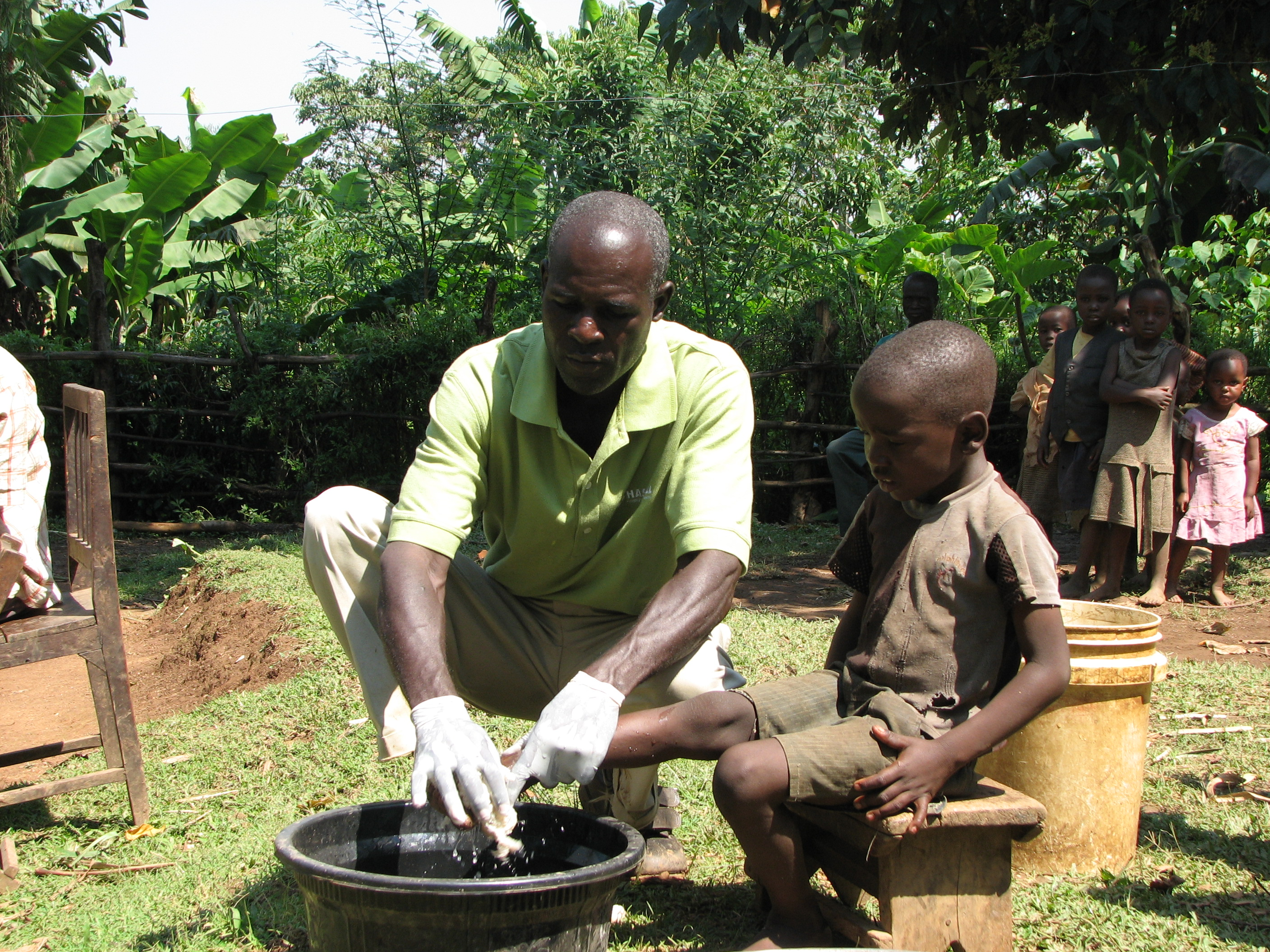 Fred shisanya treating a child for jiggers